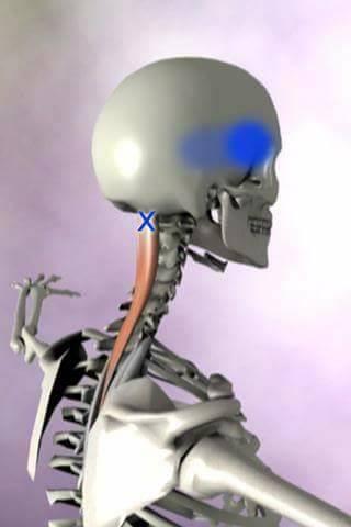 Bagian Tubuh Terasa Sakit  Ini Solusinya ! (3)